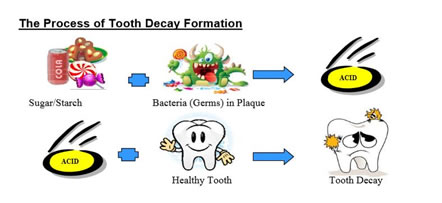 How cavities form
